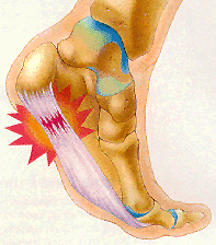 Heel pain is usually intensified after a period of rest